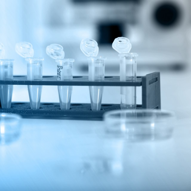 Biological samples in vials